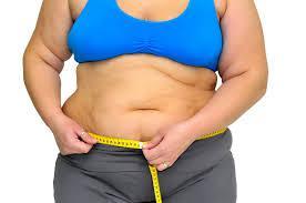 Tratamiento-de-la-obesidad-20-08-04-04